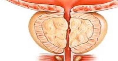 علاج التهاب البروستاتا المزمن