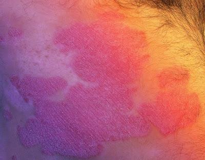 Como curar la psoriasis nerviosa