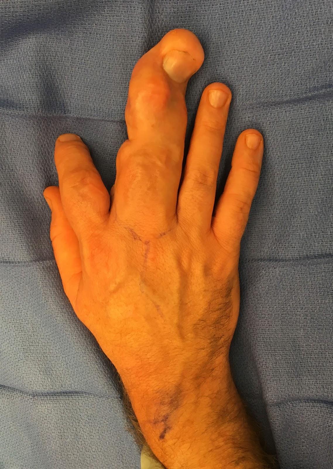 Index Finger To Ring Finger