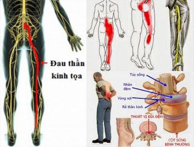 Triệu chứng và cách phòng ngừa đau thần kinh toạ
