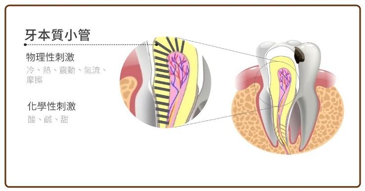 牙本質小管的暴露造成牙齒敏感
