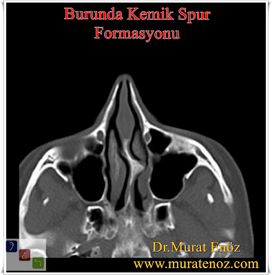 Bone Spur of Nose - Removal of a Septal Bone Spur - Nasal Bone Spur - Bony Nasal Septal Spur - What Is a Nasal Bone Spur? - Septoplasty Correction of a Crooked Deviated Septum - Nasal Bone Spurs Surgery İstanbul - Nasal Bone Spur Treatment in Turkey - Symptoms of Nasal Bone Spur - Nose Bone Spur Formation - Contact Point Headaches - Diagnosis of Nasal Bone Spur