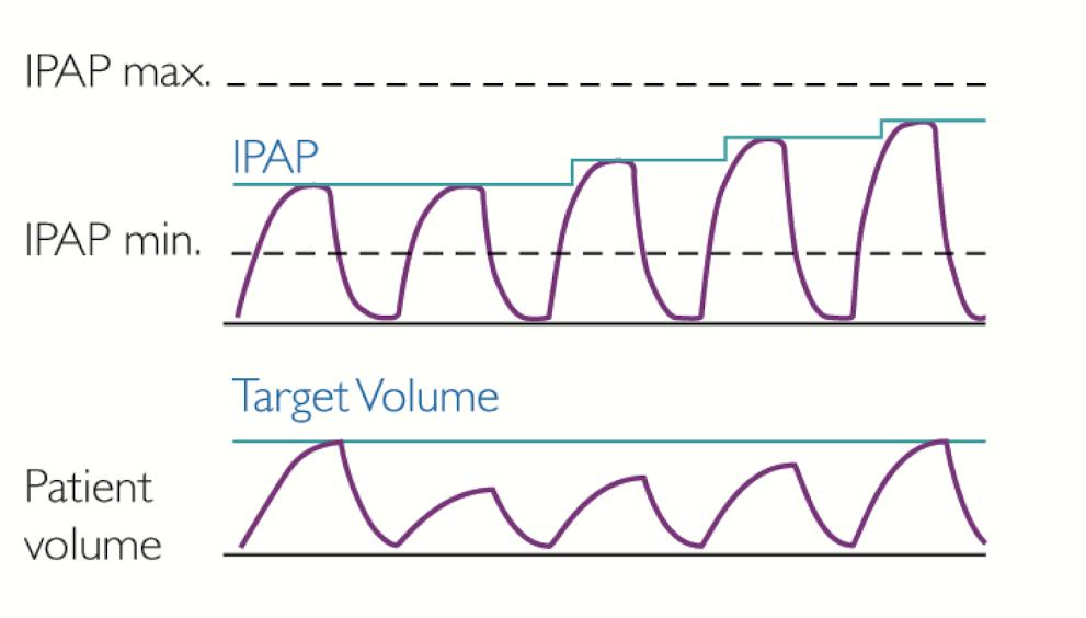 Czym są aparaty BiPAP z funkcją AVAPS (iVAPS)?