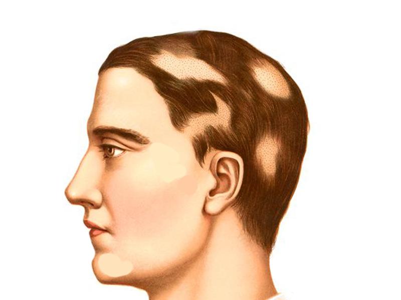 alopecia treatment in hindi