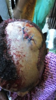 mapoly student beaten to coma