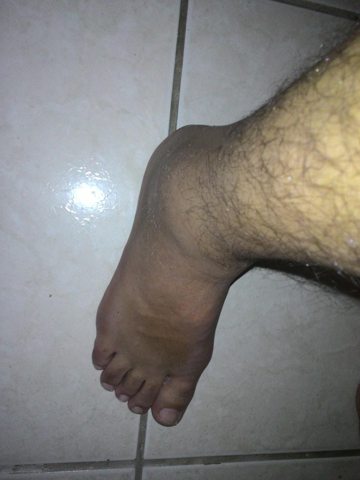 sensação de queimação normal após cirurgia no tornozelo