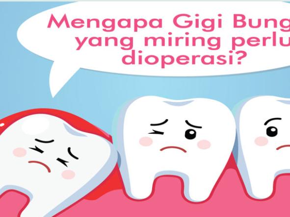 Pengalaman Operasi Gigi Bungsu di RSUD Gunung Malang - Balikpapan