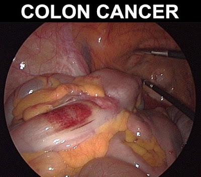 Collon_cancer