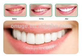 Size Difference Snow Teeth Whitening Kit