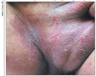 obat gatal iritasi di kelamin paling ampuh