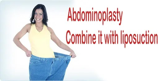 Abdominoplasty and its combination with liposuction