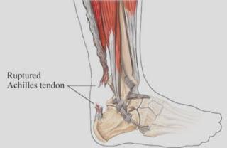 Asuhan Keperawatan Pada Pasien Ruptur Tendon Achilles
