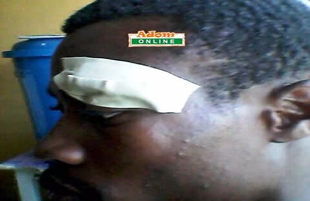 NDC man allegedly beaten for defecting to NPP