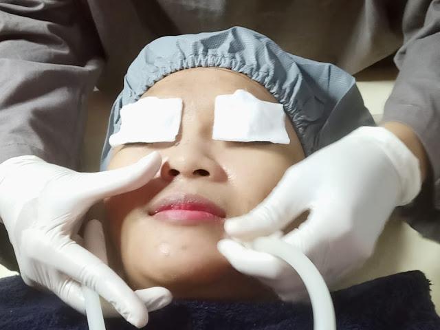 facial brightening treatment nouria bekasi