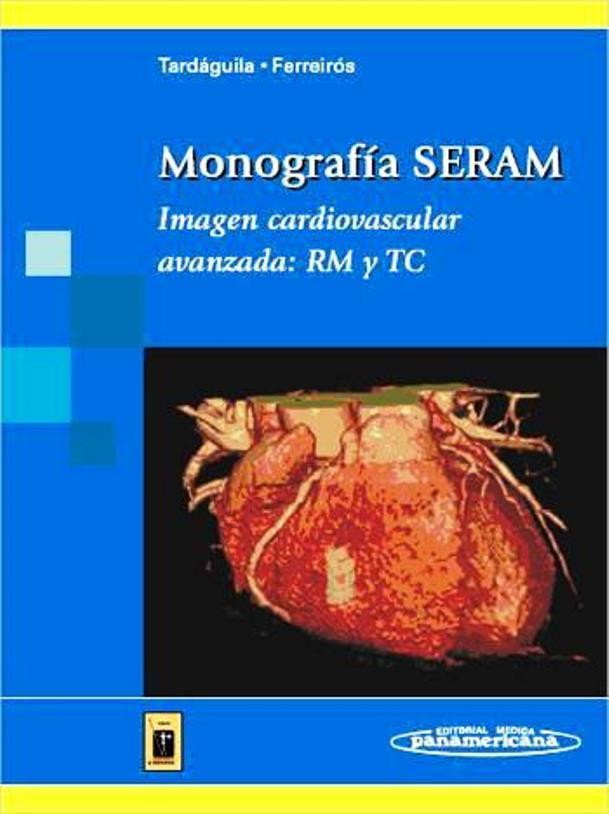 Imagen cardiovascular avanzada: RM y TC – Monografía SERAM