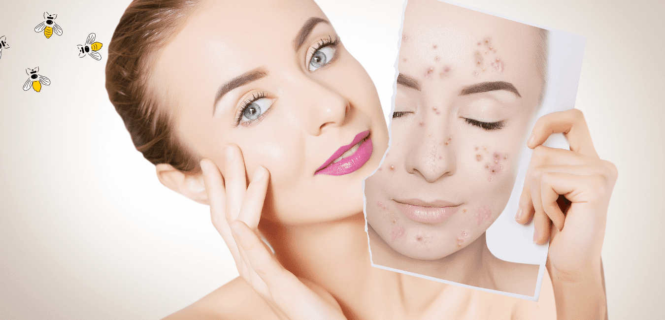 How To Treat Spring Time Acne By Barbies Beauty Bits
