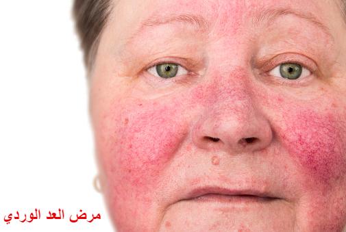 مرض العد الوردي:  أعراض وطرق الوقاية منه