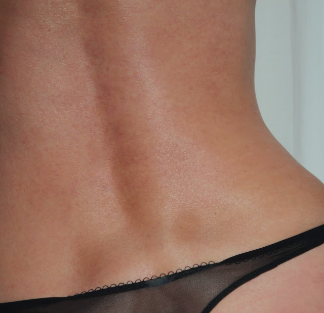 skin on the lower back