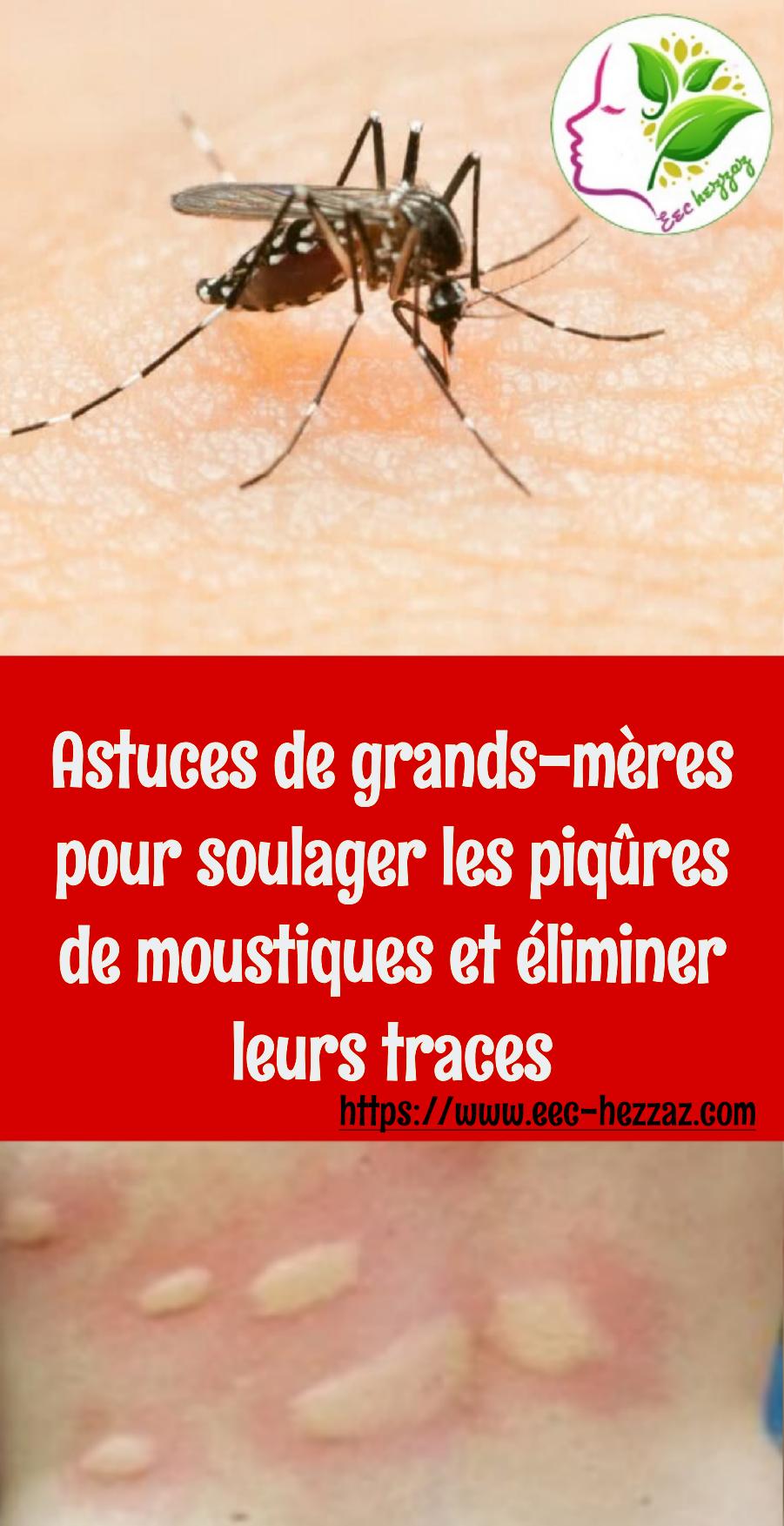 Astuces de grands-mères pour soulager les piqûres de moustiques et éliminer leurs traces