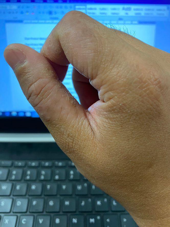 Contact dermatitis on fingers
