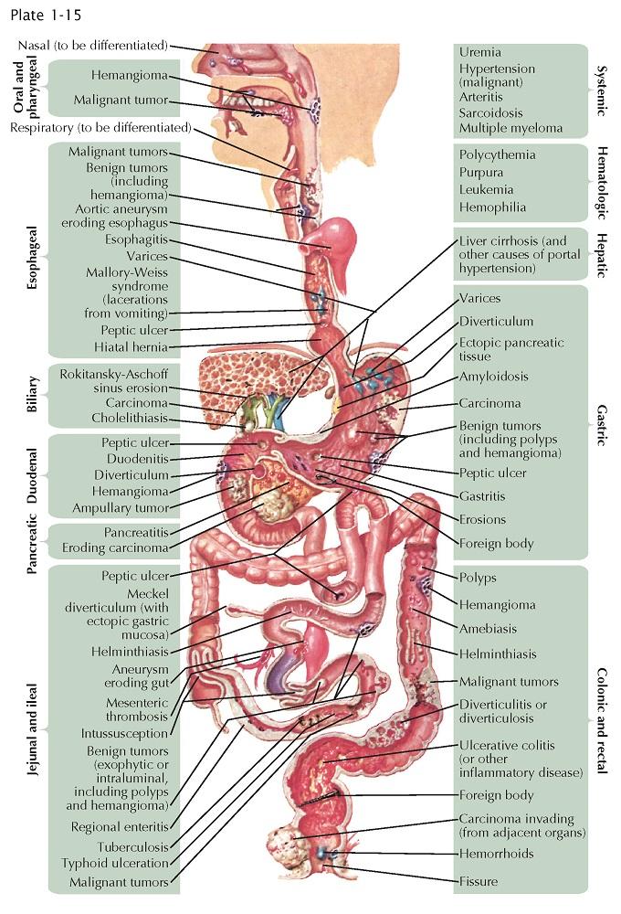 CAUSES OF GASTROINTESTINAL HEMORRHAGE