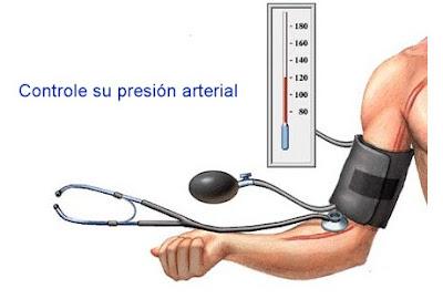 Factores relacionados hipertensión arterial