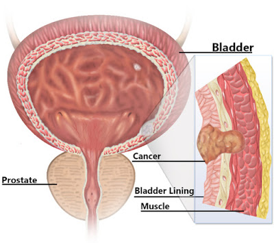 http://www.best-urologist-doctor.com/bladder-cancer.html
