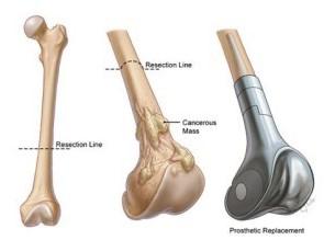 Bone cancer -