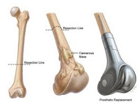Bone cancer - symptoms and tests for bone cancer