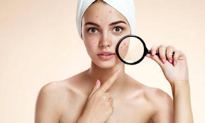 Tips ampuh menghilangkan jerawat dikulit wajah