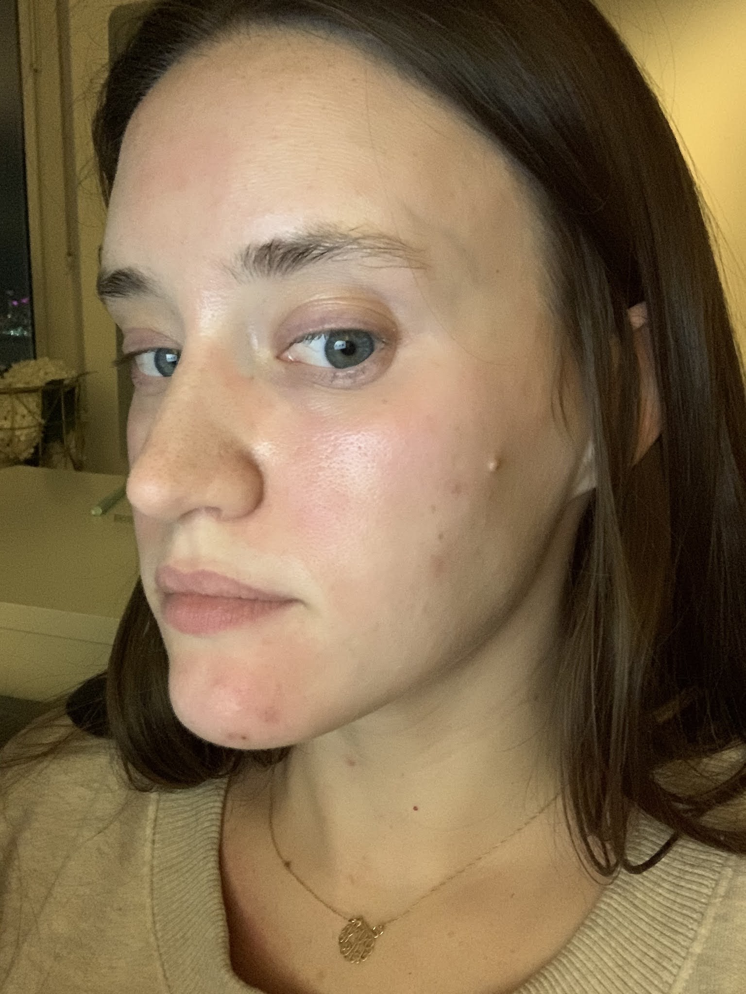 Differin acne treatment results