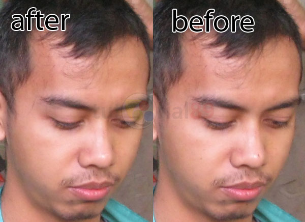 Cara menghilangkan jerawat dan komedo dengan photoshop