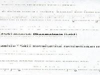 CARA MENGATASI HASIL PRINTER EPSON L360 TINTA TIDAK TIMBUL