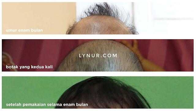 Mom Blogger Medan - Zwitsal Hair Lotion Bantu Tumbuhkan Rambut