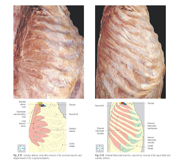 Serratus anterior seen after removal of the pectoral muscles and displacement of the scapula backwards. External intercostal muscles, exposed by removal of the upper limb and serratus anterior.
