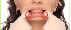 Resistance exercise to strengthen LIPS