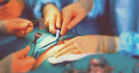 Apakah usus buntu sanggup diobati tanpa operasi Apakah Usus Buntu sanggup Diobati Tanpa Operasi? Bagaimana caranya?