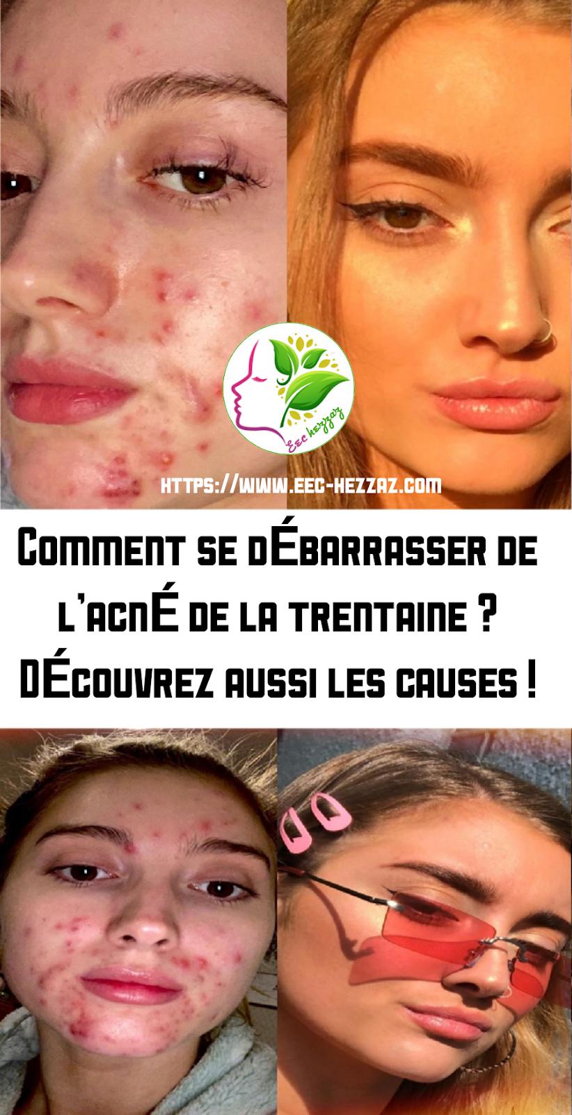 Comment se débarrasser de l'acné de la trentaine ? Découvrez aussi les causes !