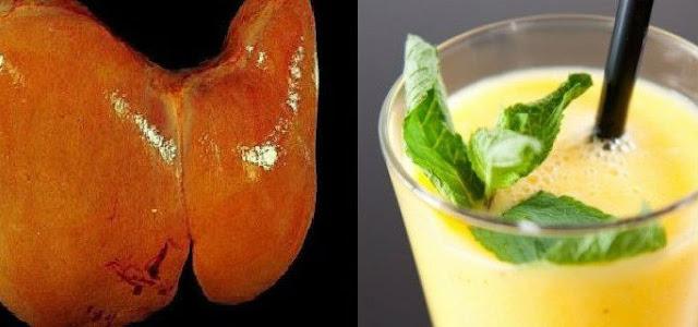 Macam-macam Jenis Kolesterol atau Lemak pada Aliran Darah