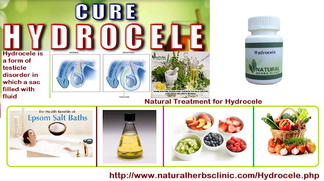 Herbal Remedies For Hydrocele | Symptoms, Causes ...