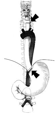 Teknik Operasi Oesophagotomy, Oesophagostomy, dan Oesophagectomy pada Hewan (Bedah Sistem Digesti)