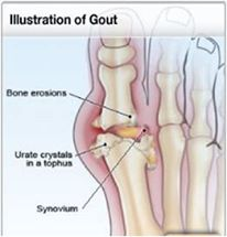 Natural home remedy for gout : Wiki Health Blog