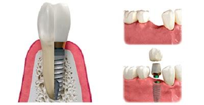 những lưu ý trước khi trồng răng implant -2