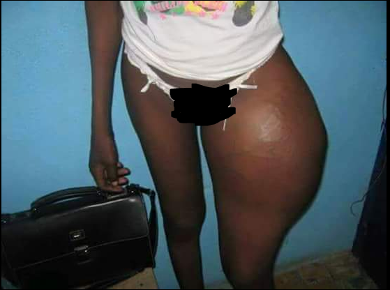 See What Happened To This Nigerian Lady After A Failed Bottom Enlargement ( See Photos)