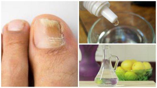 Como se librará del hongo sobre la uña en el pie