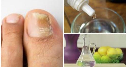La medicina barata contra el hongo de las uñas