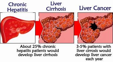 Pengobatan penyakit kanker hati - Cara menghilangkan kista ...