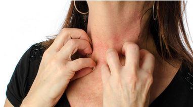 Efek stres pada kulit