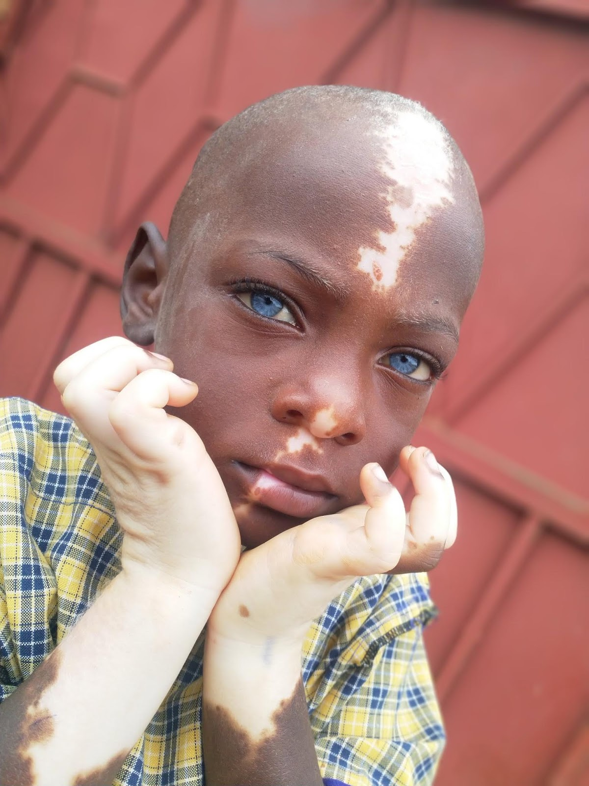 Meet charming African mute kid with blue eyes and Avatar scar