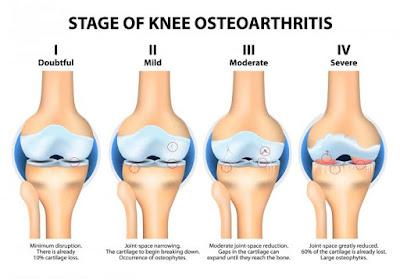 Osteoarthritis Specialist in chennai